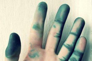 Рука в зеленке